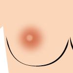 乳首 黒ずみレベル1