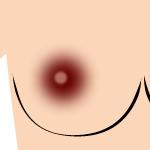 乳首 黒ずみレベル4