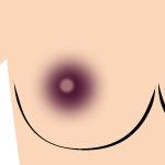 乳首 黒ずみレベル5