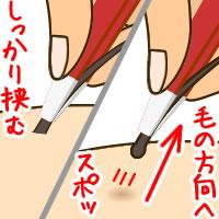②毛をつまみ、生えている方向に沿って抜く (1)
