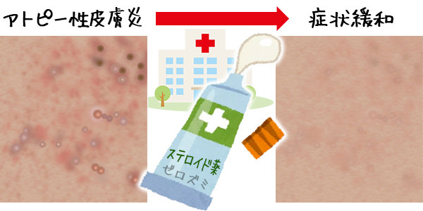 病院での治療が必要な膝のぶつぶつの種類
