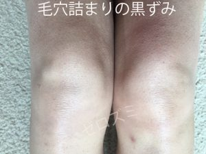 毛穴詰まりの膝の黒ずみ