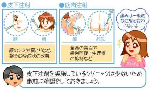 皮下注射と筋肉注射の違いを説明する医師