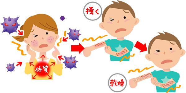 アトピー性皮膚炎疾患の原因