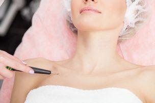 乳首の黒ずみに医療レーザーを照射してもらう女性