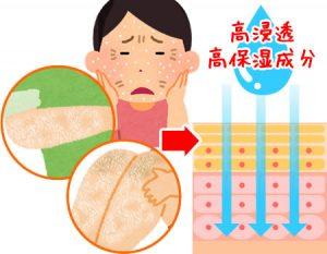 ①肌が乾燥・ガサガサしている方は「高浸透高保湿成分」が良い