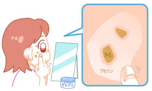 ハイドロキノンを使用する時はワセリンを塗る