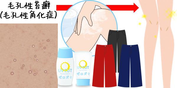 肌色または赤っぽい膝のぶつぶつに適した対策