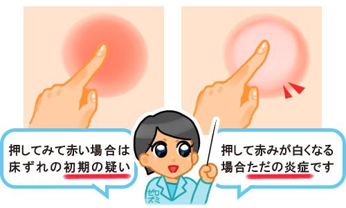 床ずれ初期症状とただの炎症の見分け方を説明する医師