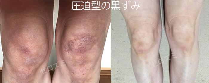 圧迫型の膝の黒ずみ