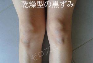乾燥型の膝の黒ずみ