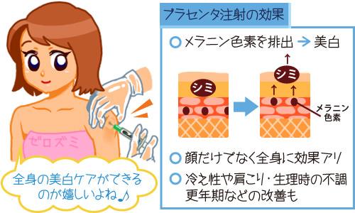プラセンタ注射の受けながら効果を説明する女性