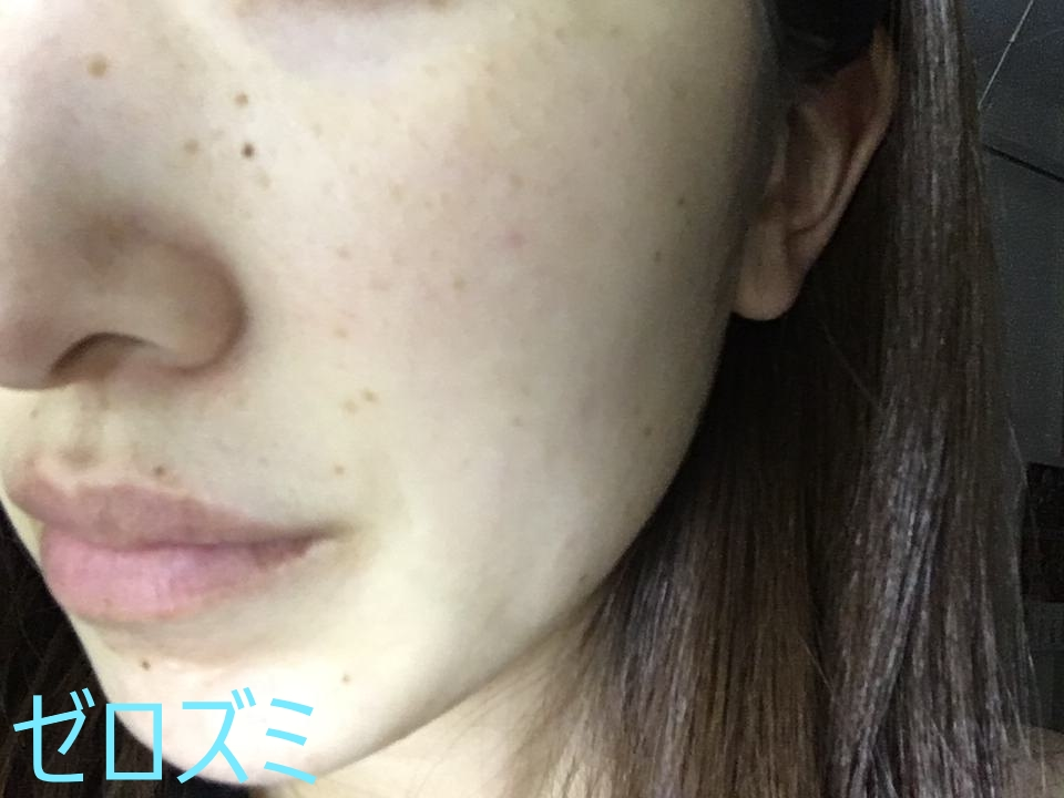 日光黒子(老人性色素斑)のシミがある女性の写真