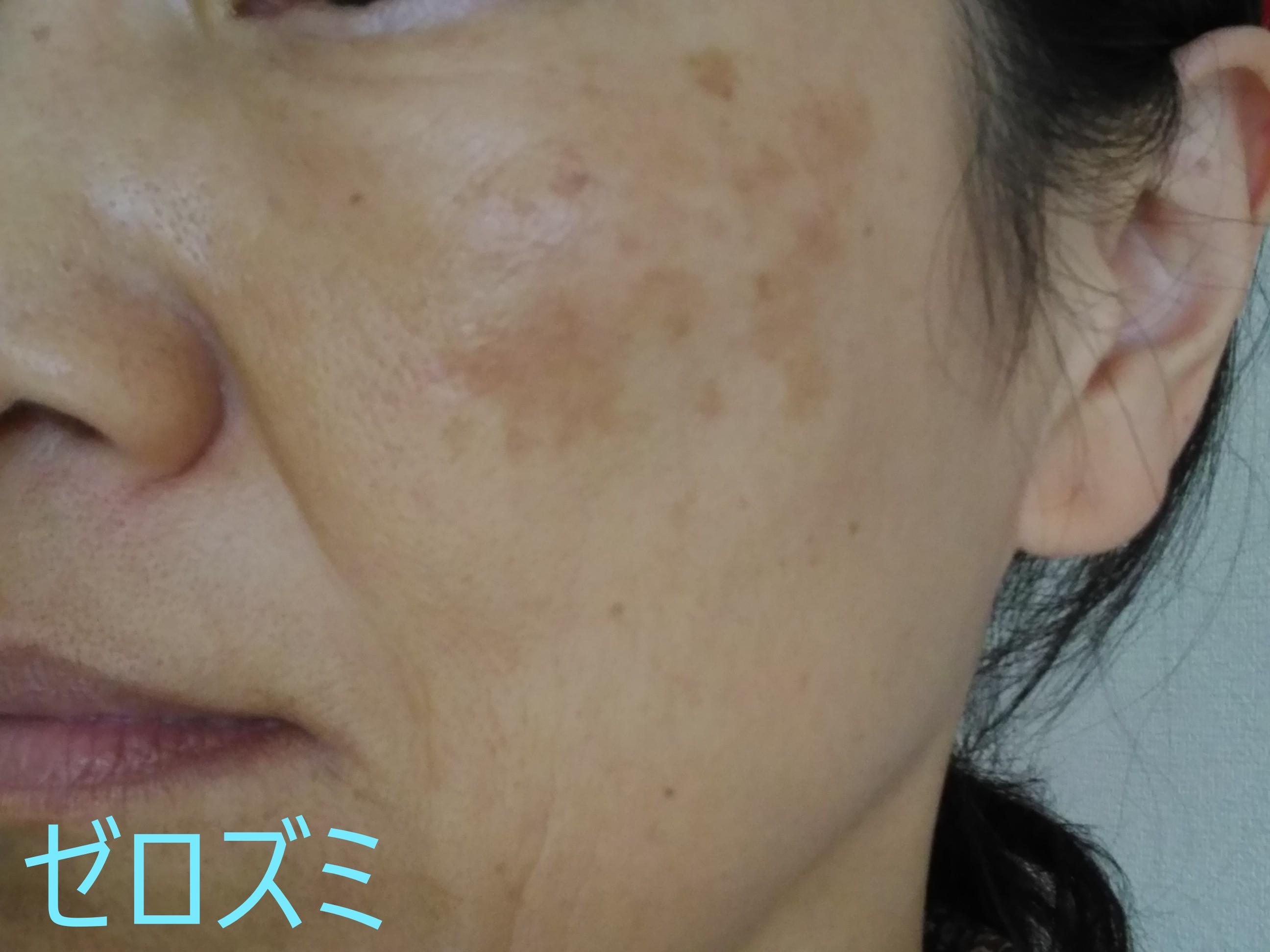 肝斑のシミがある女性の写真