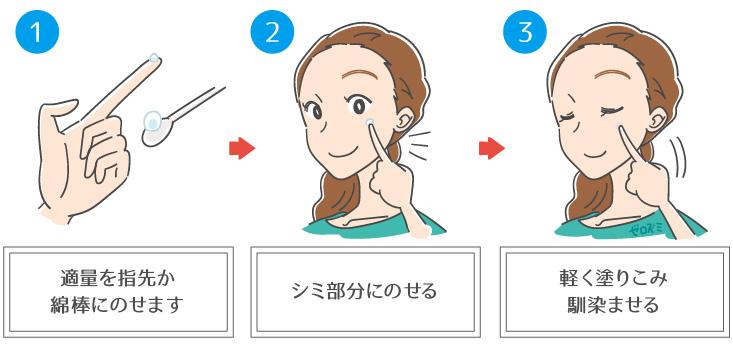 ハイドロキノンクリームをシミ部分のみに使用する女性