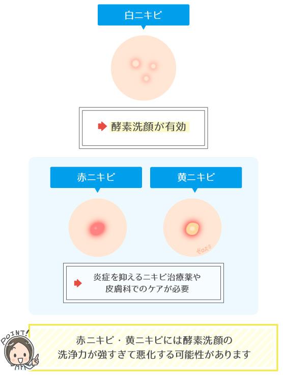 酵素洗顔は白ニキビに有効